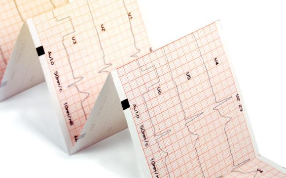 EKG spoczynkowe